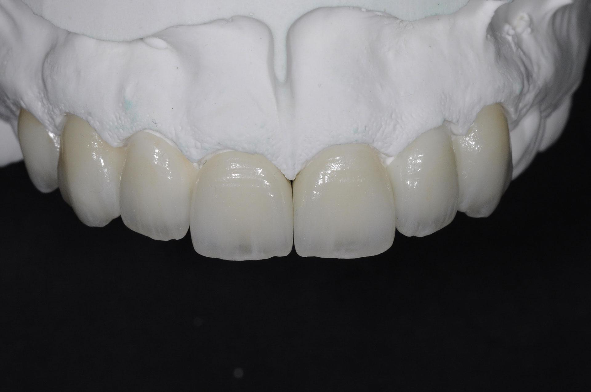 Dantų laminatės – pažangiausias būdas susigrąžinti šypseną