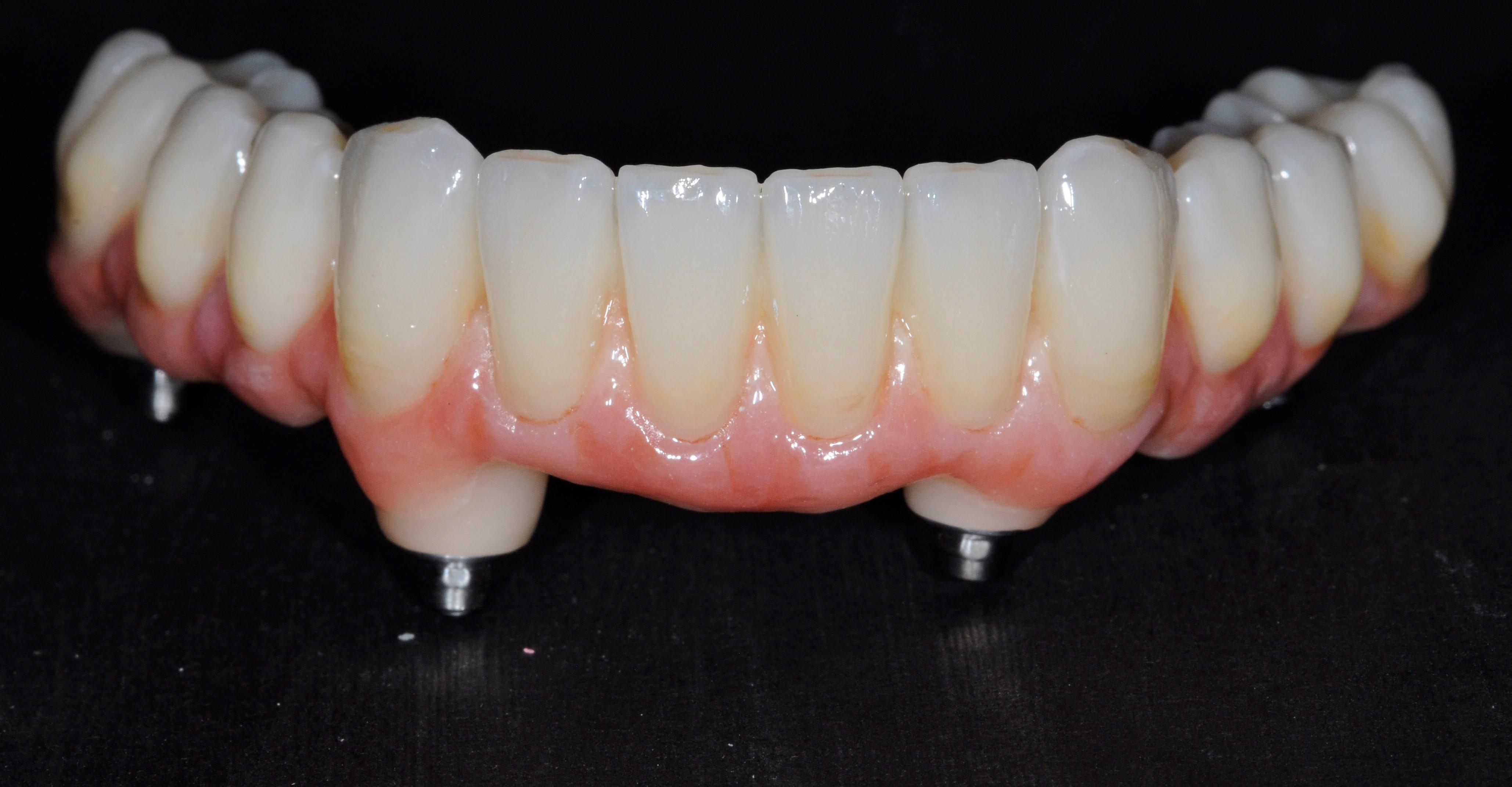 Dantų implantacija nuo 400 eur