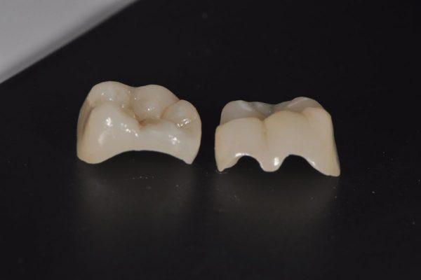 dantu uzklotai