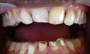 Labai stiprus dantų nudilimas